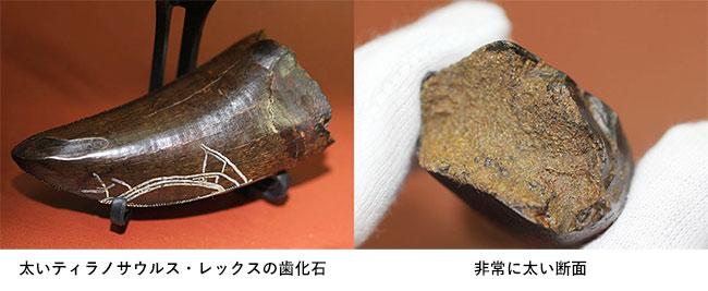 前上顎骨歯の写真